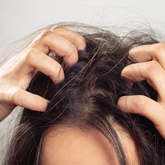 what to do if you find bed bugs in your hair